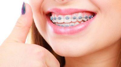 Questions about Orthodontic Treatment